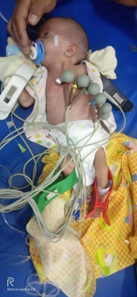 Bayi Mungil Penderita Jantung Bocor Butuh Bantuan Dermawan